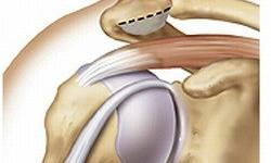 impingement-syndrome-3