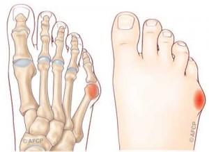 Douleur côté extérieur pied