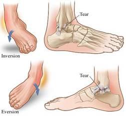 lesion ligament cheville